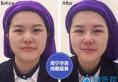 【亲身经历】花6800元找南宁华美刘真俊做线雕隆鼻全过程图片