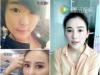 【亲身经历】花1万多在上海华美找杨建做膨体隆鼻+双眼皮1个月