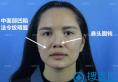 花8800元找济南海峡院长赵广生做鼻综合1个月妹子的亲生经历