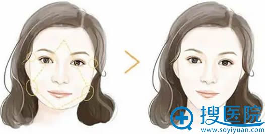 菱形脸方案_瘦脸针+玻尿酸丰太阳穴效果对比