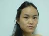 【真人案例】妹子花12000元在贵阳美莱做达拉斯鼻综合恢复过程