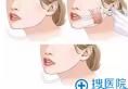 在新疆整形美容医院花5880元做下颌缘提升+瘦脸针包子脸变空姐