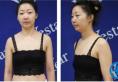【杭州yestar案例】花了19800元找yestar整形钟冠鸿做假体隆胸