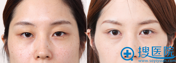 日本竹内重夫双眼皮对比图