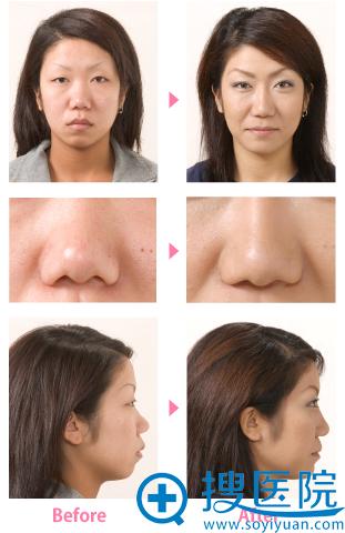 竹内重夫鼻子+嘴唇整形案例