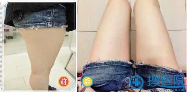 九院整形科大腿吸脂前后效果对比