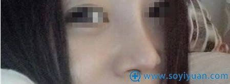 李庭勋院长做鼻综合术后20天恢复照