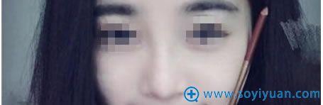 我在上海华美做硅胶隆鼻+垫鼻尖+朝天鼻矫正术后1个月