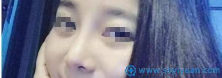 在上海华美找李庭勋院长做鼻综合恢复效果