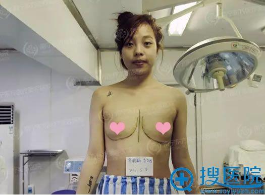假体丰胸手术前的准备工作全部到位