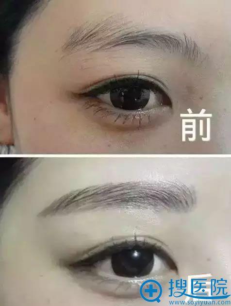 韩式半根状眉案例对比展示