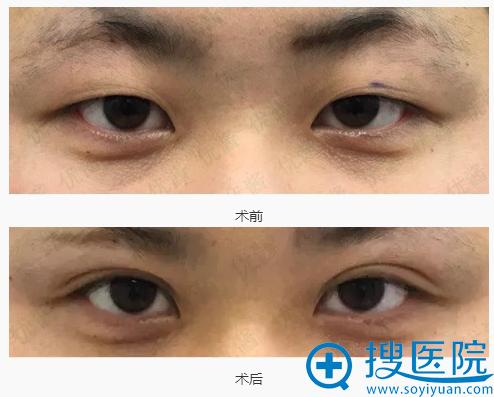 阪田美容形成外科阪田和明埋线双眼皮手术前后对比