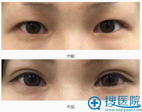 阪田美容形成外科阪田和明切开双眼皮前后对比