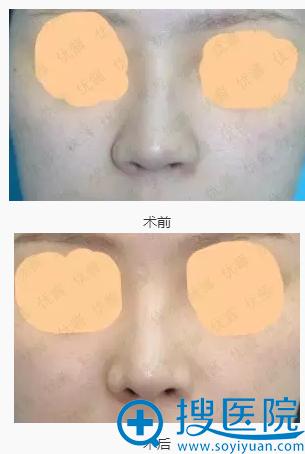 阪田美容形成外科阪田和明耳软骨垫鼻尖前后对比图