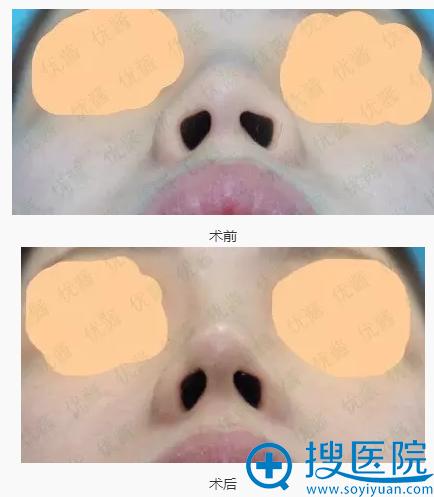 阪田美容形成外科阪田和明耳软骨垫鼻尖细节图