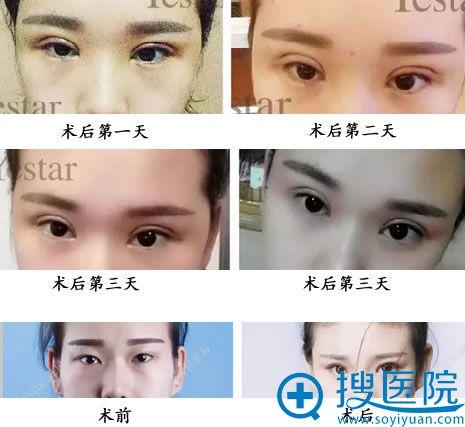 北京艺星双眼皮术后恢复情况及术后对比图
