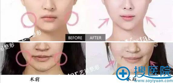 北京艺星瘦脸针案例对比照片