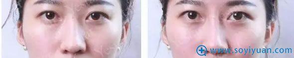 北京艺星玻尿酸注射鼻梁案例