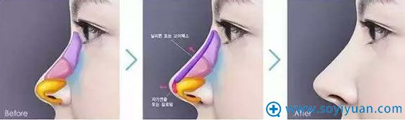 注射隆鼻效果示意图