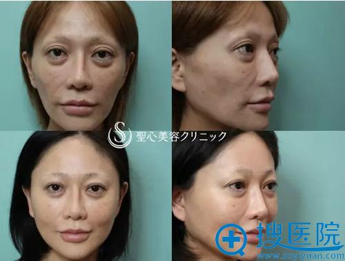 日本整形医生美原寿之院长真人案例
