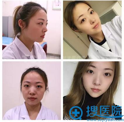 杭州时光玻尿酸隆下巴术前术后对比图