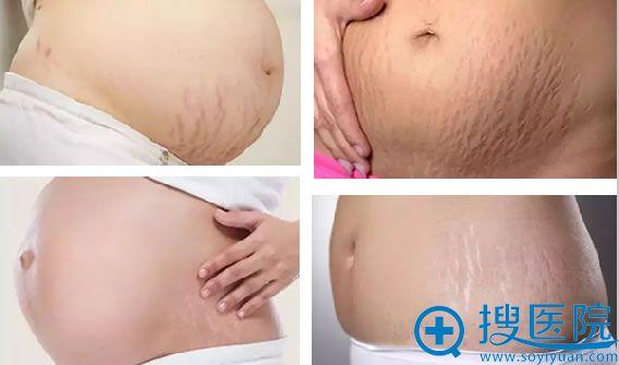 """十月怀胎后,满身伤留下的""""美丽""""痕迹——妊娠纹"""