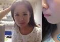 上海华美李志海磨骨怎么样 花3万多元做下颌角真实经历告诉你