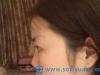 【案例】看我花1.8万元找上海百达丽谈宇腾做的隆鼻效果怎么样
