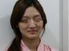 深圳美莱梁晓健自体脂肪填充脸颊真人案例 术后1个月后恢复效果