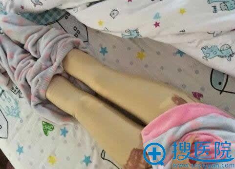 在青岛壹美做吸脂瘦腿手术第1天