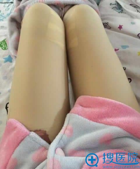 做完大腿吸脂术后第2天_青岛壹美整形