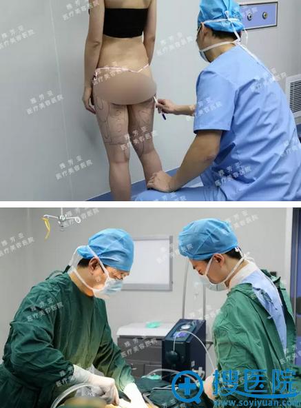 大腿吸脂手术进行中