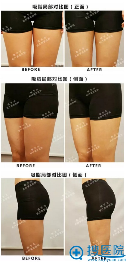 大腿吸脂局部对比图