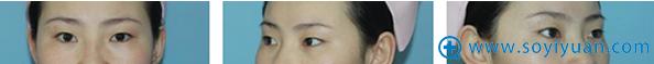 【真人案例】北京京民医院郭建玲切开双眼皮一个月消肿恢复日记