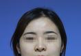 北京圣嘉新张笑天做长曲线下颌角截骨整形案例 3个月摆脱国字脸