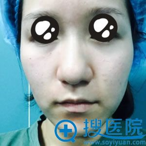 上海百达丽做玻尿酸填充泪沟照片