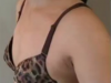 长沙美莱整形美容医院王勇假体隆胸手术 让我变成性感女神