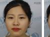 石家庄蓝山王兴奎切开双眼皮玻尿酸隆鼻瘦脸针案例术后对比照
