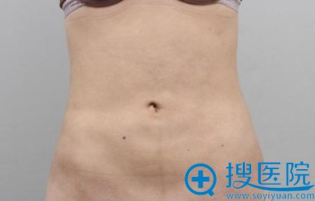 腹部吸脂后腹部尺寸瘦了12厘米