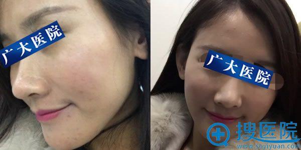 注射玻尿酸填充苹果肌带妆照片
