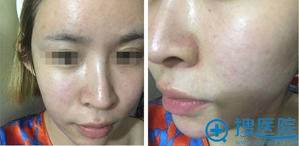 术后27天,浅了很多,化淡妆就可以遮盖掉