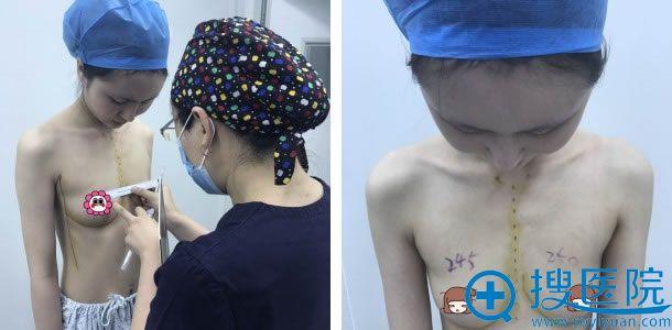 北京叶美人季滢设计假体隆胸方案