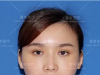 上海喜美整形医院王会勇曲妙轩鼻综合修复案例 12万元重获美鼻