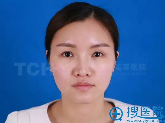 杭州时光做注射玻尿酸填充前照片