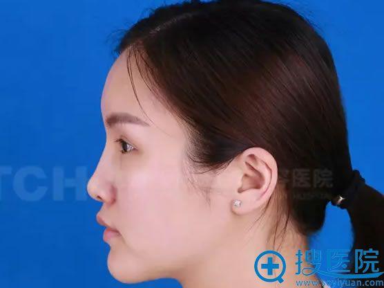 注射玻尿酸丰下巴前的侧面照片