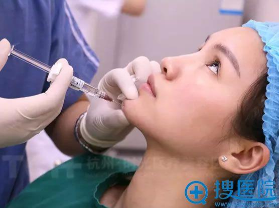 杭州时光注射玻尿酸丰下巴过程图