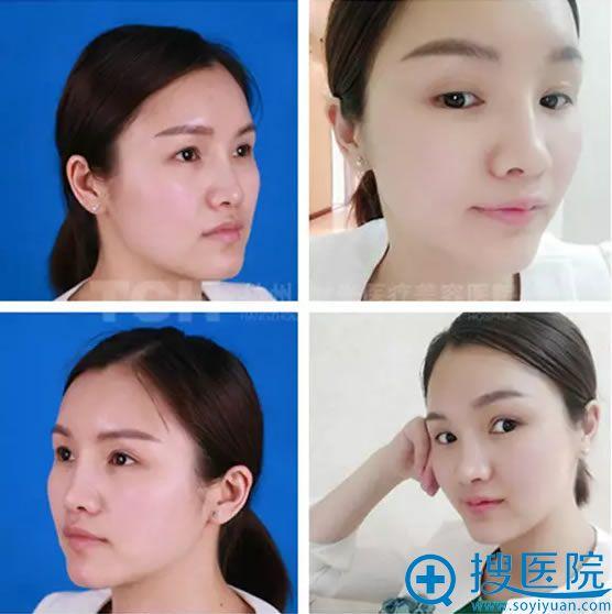 杭州时光员工注射玻尿酸前后效果对比照片
