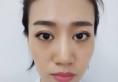 北京圣嘉新医院邱立东面部自体脂肪填充案例 让我拥有少女脸