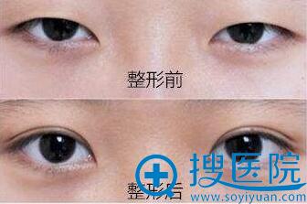 四川西婵整形医院双眼皮案例