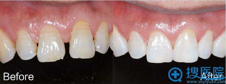 汕头名流牙齿快速矫正前后对比图